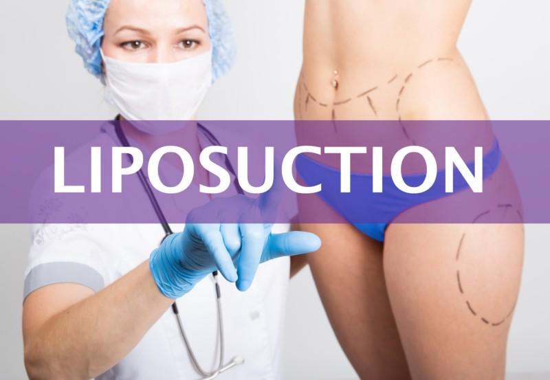 Liposuction vs Tummy Tuck