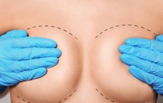 Lollipop breast lift