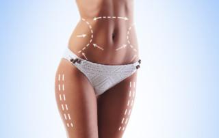 Abdominoplasty Miami FL